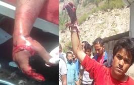 आंदोलनकारी मजदूरों पर इंटक का घातक हमला